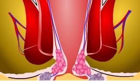 Il nodo di gemorroidalny infiammato